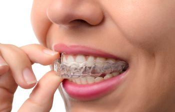 Marietta GA Orthodontist,