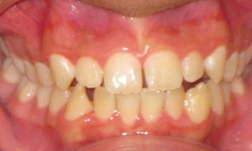 close up of teeth - orthodontic surgery - Andrew Geiger Before