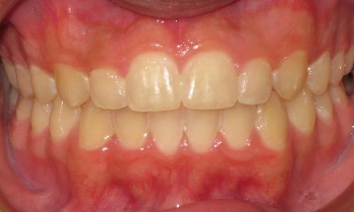 close up of teeth - orthodontic surgery - Andrew Geiger After