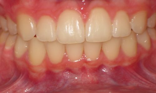 close up of teeth - orthodontic surgery - Aubrey McLerran after