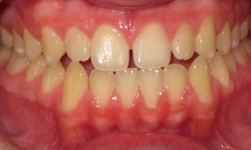 close up of teeth - orthodontic surgery - Avery Eikost before