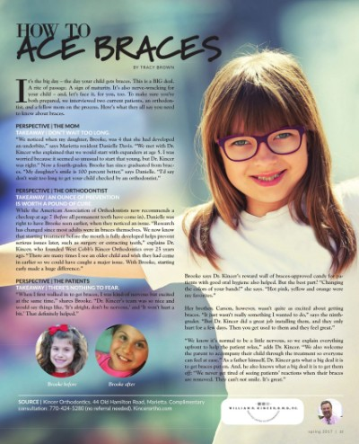 Article thumbnail - How to Ace Braces