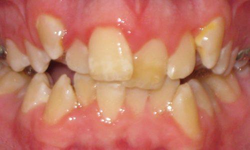 close up of teeth - orthodontic surgery - Brenden Eades before