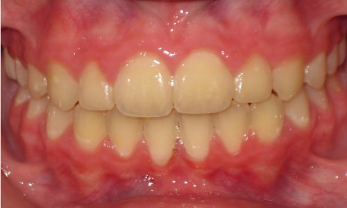 close up of teeth - orthodontic surgery - Brenden Eades after