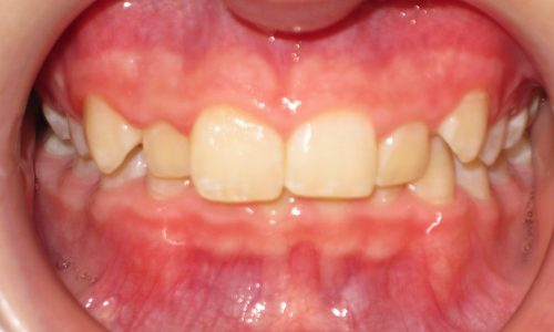 close up of teeth - orthodontic surgery - Callihan Donnelly before