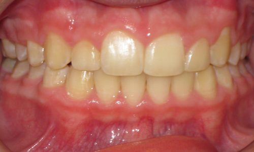 close up of teeth - orthodontic surgery - Callihan Donnelly after