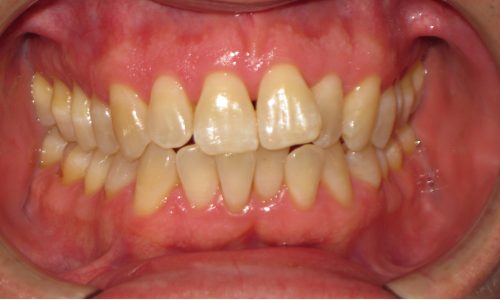 close up of teeth - orthodontic surgery - Chris Weaver before