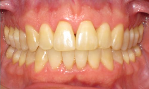 close up of teeth - orthodontic surgery - Chris Weaver after