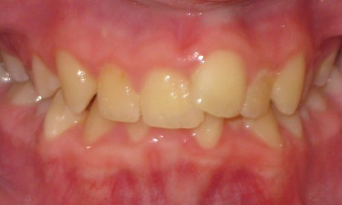 close up of teeth - orthodontic surgery - Connor Eades before