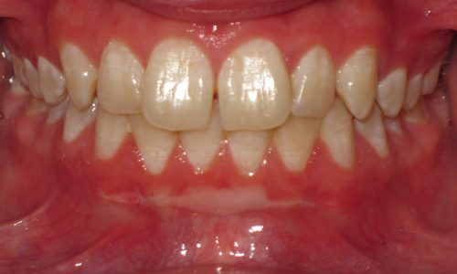 close up of teeth - orthodontic surgery - Eric Escoe before