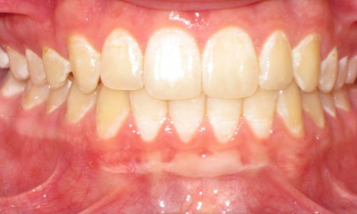 close up of teeth - orthodontic surgery - Eric Escoe after