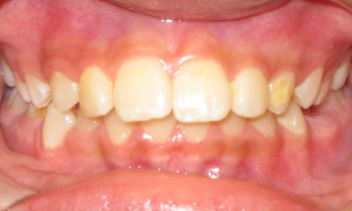 close up of teeth - orthodontic surgery - Esther Curry before
