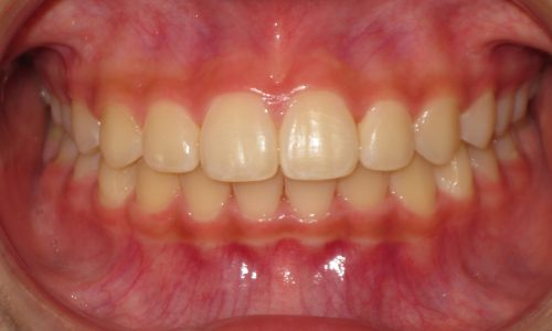 close up of teeth - orthodontic surgery - Esther Curry after