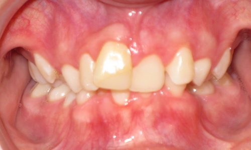 close up of teeth - orthodontic surgery - Hannah Grace before