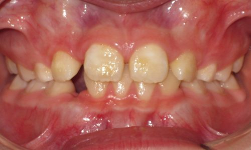 close up of teeth - orthodontic surgery - Henry Galluzzo before
