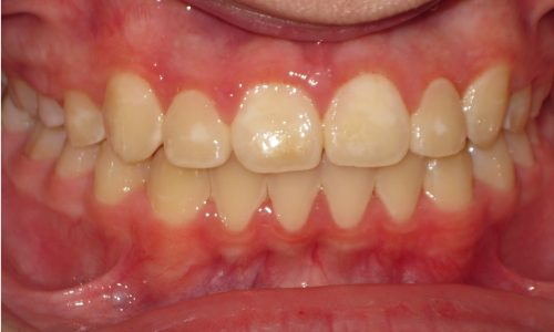 close up of teeth - orthodontic surgery - Henry Galluzzo after
