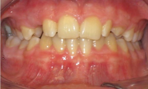 close up of teeth - orthodontic surgery - Jacob (Jake) Gleeson before