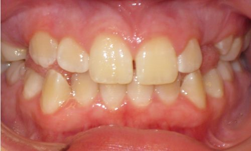 close up of teeth - orthodontic surgery - Kennedy Warren before