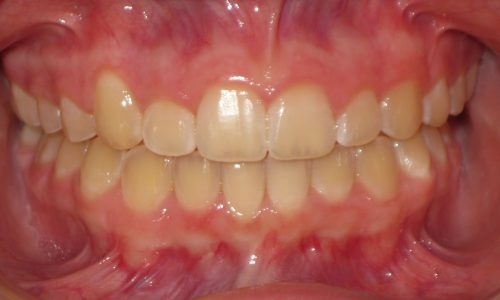close up of teeth - orthodontic surgery - Kennedy Warren After