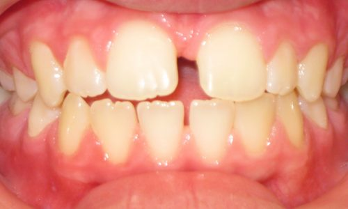 close up of teeth - orthodontic surgery - Kristen Meeks Before