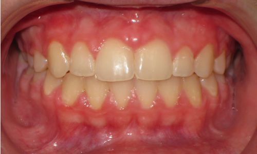 close up of teeth - orthodontic surgery - Kristen Meeks After
