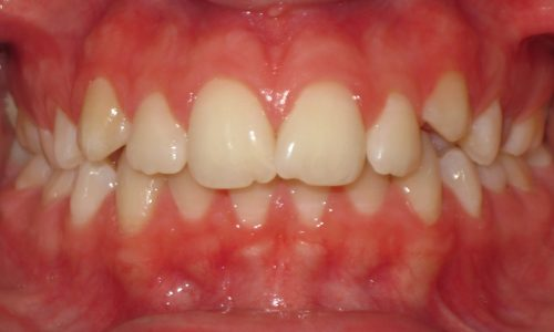 close up of teeth - orthodontic surgery - Maggie Coley before