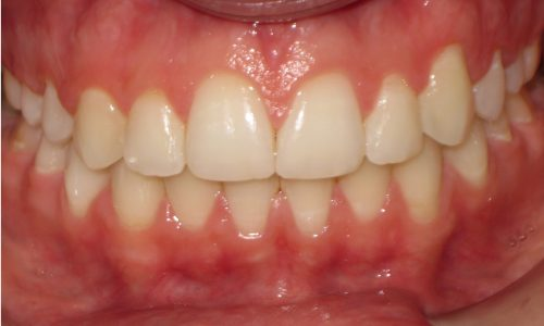 close up of teeth - orthodontic surgery - Maggie Coley after