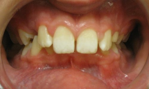 close up of teeth - orthodontic surgery - Matthew Plunk before