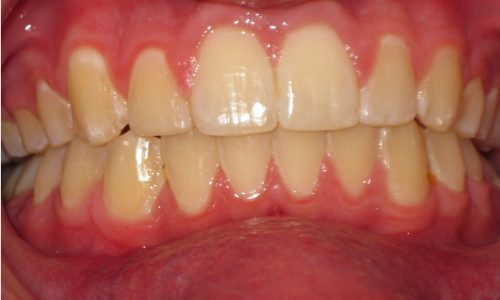 close up of teeth - orthodontic surgery - Matthew Plunk after