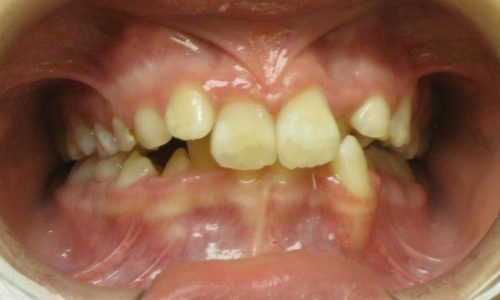 close up of teeth - orthodontic surgery - Sarah Yokley before