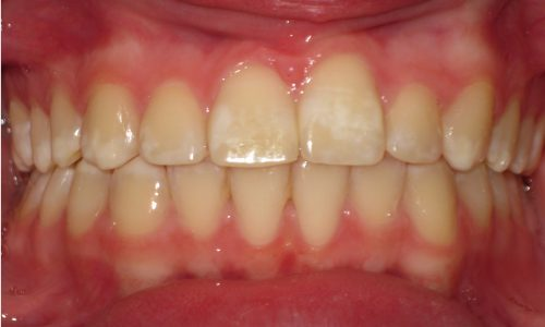 close up of teeth - orthodontic surgery - Sarah Yokley after