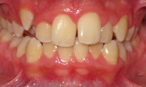 close up of teeth - orthodontic surgery - Seth Madden before
