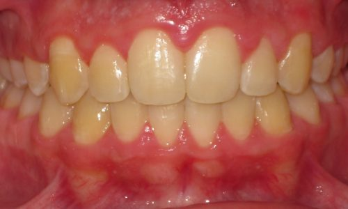 close up of teeth - orthodontic surgery - Seth Madden after