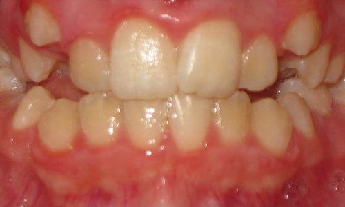 close up of teeth - orthodontic surgery - Skyler Cake before