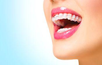 Orthodontics Marietta GA